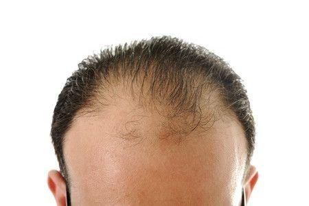 Carbossiterapia contro l'alopecia