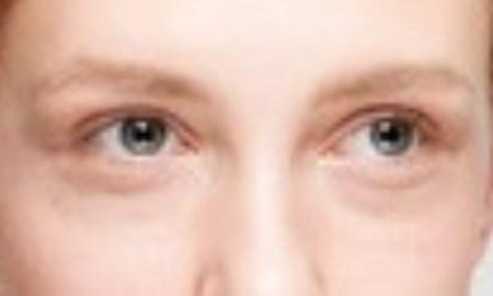 Il successo del filler alle occhiaie
