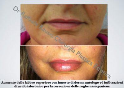 Aumento Labbra Con Derma Autologo Roma