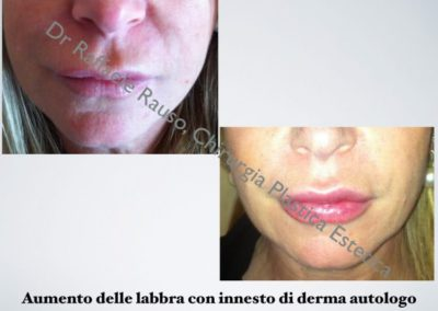 Aumento Labbra Innesto Dermo Autologo Roma