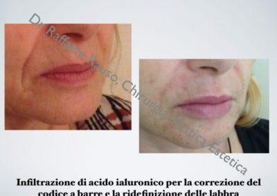 Infiltrazione Acido Ialuronico Codice Barre Ridefinizione Labbra Roma