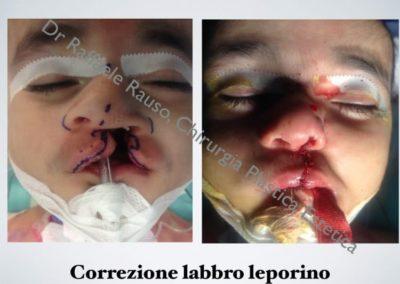 Labbro Leporino Roma