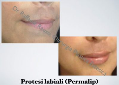 Protesi Delle Labbra Roma
