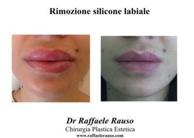 Rimozione Silicone Labbra Roma