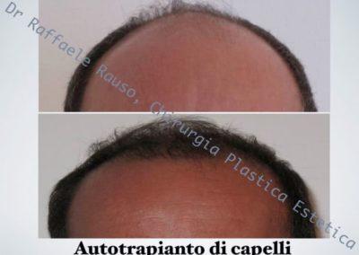 Autotrapianto Capelli Roma