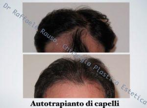 Trapianto Capelli Roma