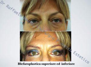 Blefaroplastica Inferiore Roma Superiore