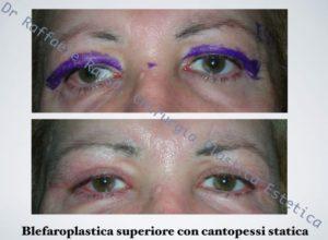 Blefaroplastica Superiore Con Cantopessi Statica Roma