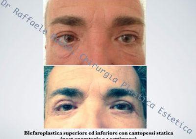 Blefaroplastica Superiore Inferiore Cantopessi Statica Roma 2 Settimane