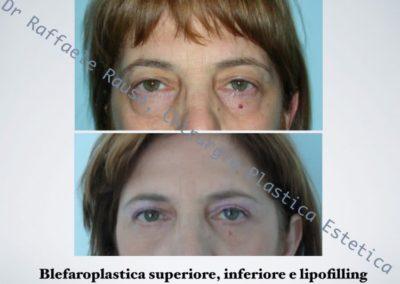 Blefaroplastica Superiore Inferiore E Lipofilling Roma