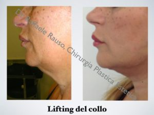 Lifting Collo Roma