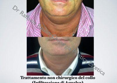 Trattamento Non Chirurgico Collo Roma