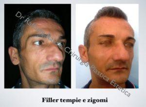 Filler Tempie Zigomi Roma