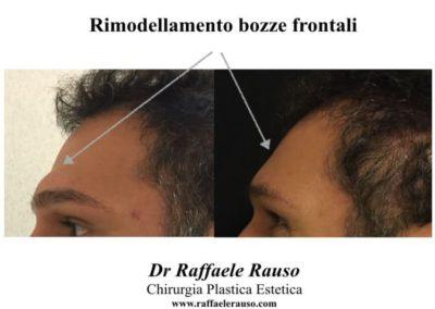 Rimodellamento Bozze Frontali Roma