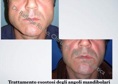 Esotosi Angoli Mandibolari Roma