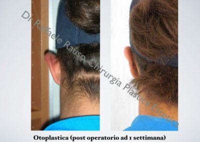Otoplastica Post Operatorio Roma