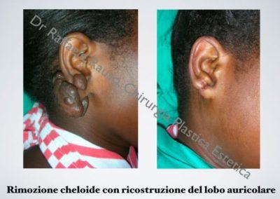 Rimozione Cheloide Ricostruzione Lobo Auricolare Roma