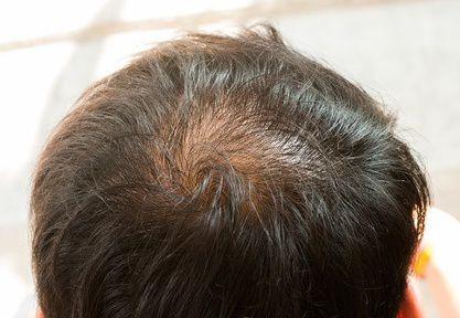 Trapianto capelli e FUE