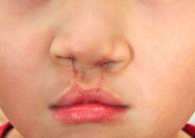La rinoplastica nella correzione del labbro leporino