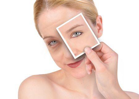 Prevenire l'invecchiamento per prolungare la bellezza