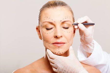 Miti da sfatare sul lifting facciale
